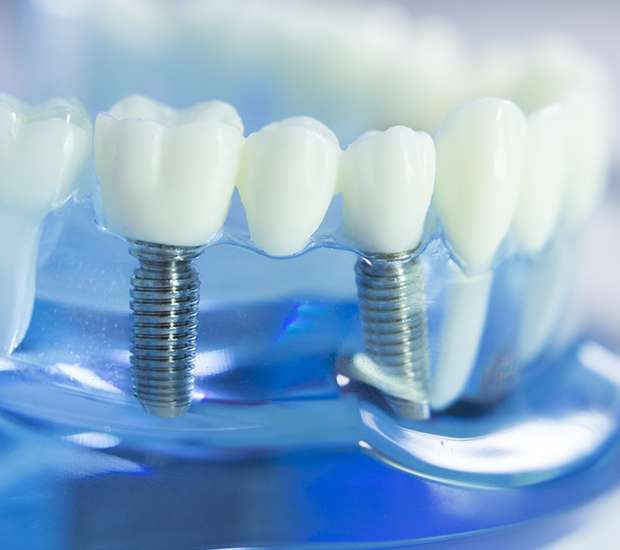 dental implants in Port Saint Lucie